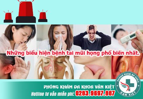 Những biểu hiện bệnh tai mũi họng phổ biến nhất.